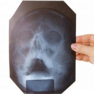 Рентген пазух носа: показания, противопоказания, трактовка результатов