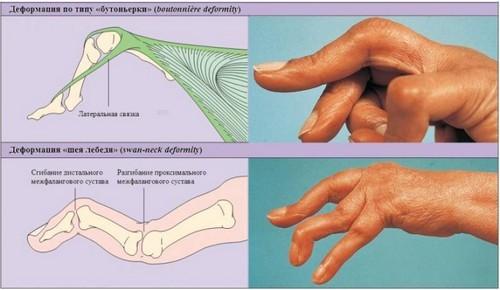 deformacii-sustavov