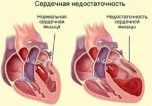 Сердечная недостаточность лечение народными методами