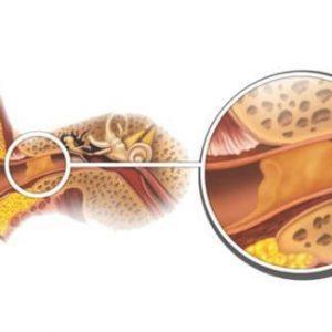 Серная пробка: причины, симптомы, лечение