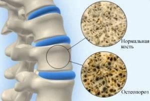 Симптомы и лечение остеопороза позвоночника