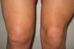 На 2 стадии артрита появляется припухлость и покраснение в области коленных чашечек