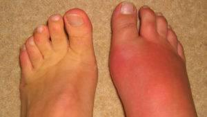 Симптомами подагрического артрита являются болевой синдром и сильный отек