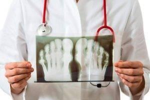 При диагностике заболевания на рентгеновском снимке видны признаки разрушения тела сустава