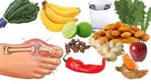 Развитие клиники подагрического артрита напрямую зависит от питания человека