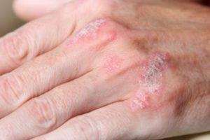 Появление кожных высыпаний в виде ярко-красных шелушащихся пятен