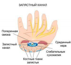 Симптомы синдрома запястного канала у человека