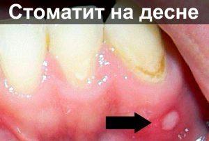 Стоматит лечение в домашних условиях