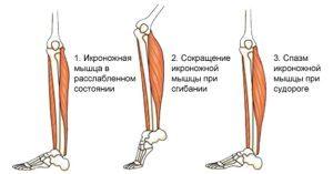 Судороги ног лечение в домашних условиях