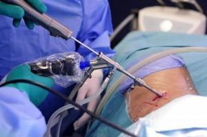 Удаление грыжи позвоночника — виды операций