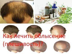 Выпадение волос лечение народными методами