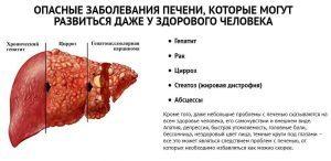 Хронические заболевания печени