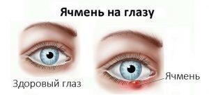 Ячмень на глазу лечение народными методами