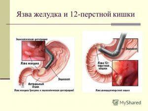 Язва желудка лечение в домашних условиях