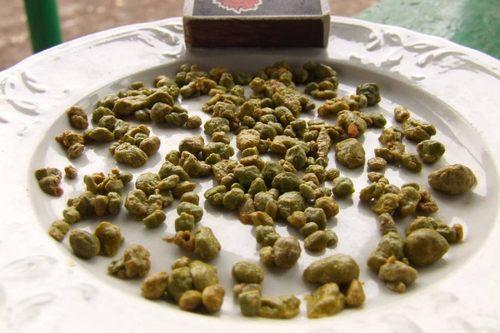 Почему образуются камни в печени