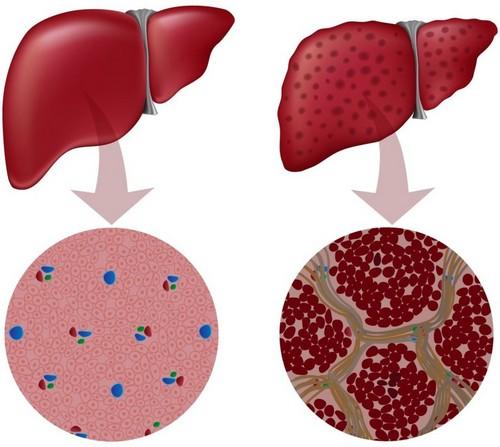 Основные симптомы гепатомегалии печени