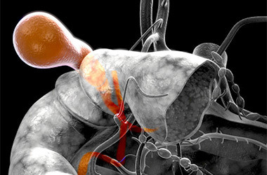 Симптомы перетяжки желчного пузыря