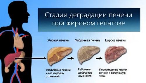 Ожирение печени или поджелудочной железы