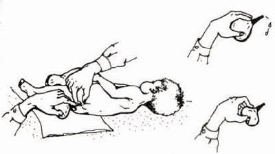 Клизма грудному ребенку при запоре