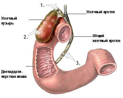 Деформация желчного пузыря Симптоматика и причина появления