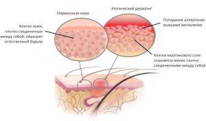 Аллергический дерматоз (дерматит)