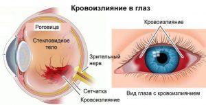 Лечение лопнувшего сосуда в глазу