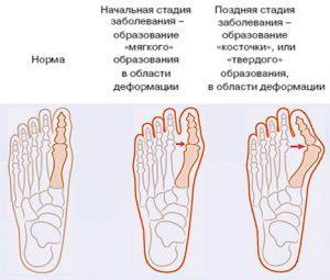 Лечение шишек на ногах мазями