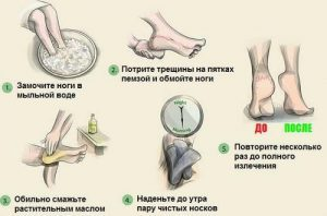 Лечение трещин на пятках народными методами