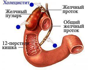 Лечение хронического бескаменного холецистита
