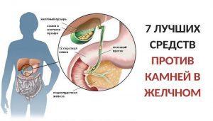 Лечение желчнокаменной болезни народными средствами