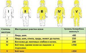 Лечение желтухи