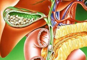 Народное лечение желчнокаменной болезни