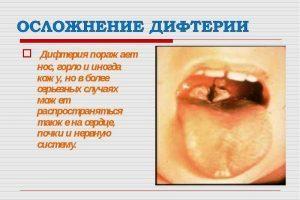 Народное средство от дифтерита, скарлатины и ангины