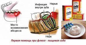 Народный способ лечения опухолей и нарывов десны