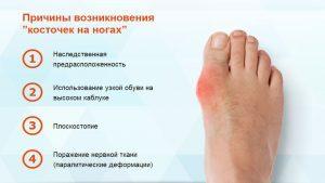 Признаки возникновения шишек на ногах