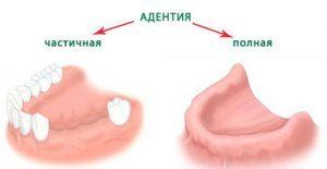 Симптомы адентии
