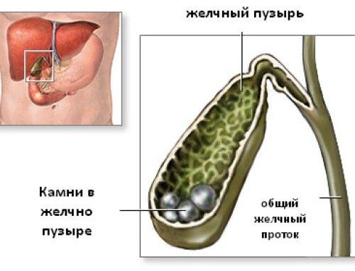 Классификация билиарного сладжа желчного пузыря