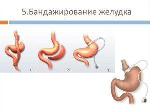 Уменьшение объема желудка самостоятельно