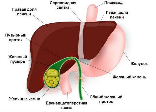 Желчный пузырь Лечение и последствия рака