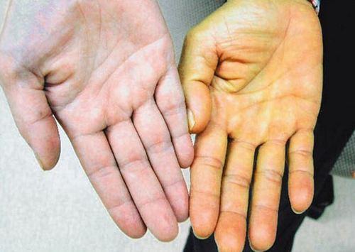 Гепатит а что это желтуха или нет
