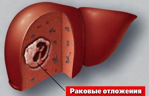 Можно ли вылечить рак печени