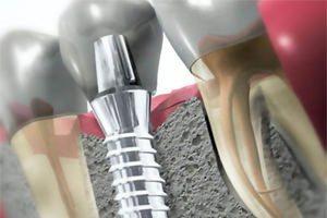 Импланты зубов как ставят, сколько служат