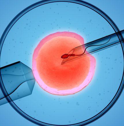 История донора яйцеклетки