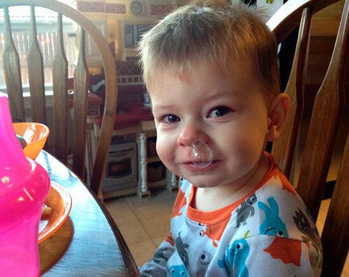 Аллергический насморк у ребенка, как отличить от простуды
