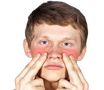 Как проявляется гайморит: симптомы