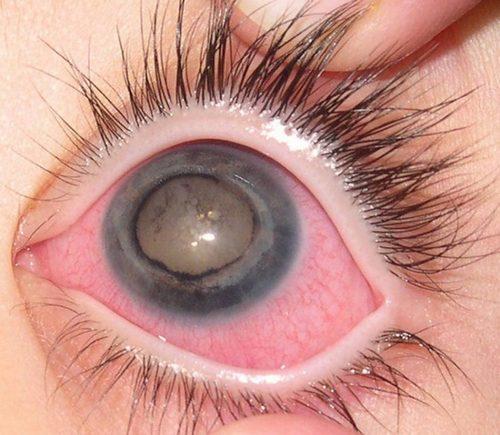 Неотложная помощь, при остром приступе глаукомы