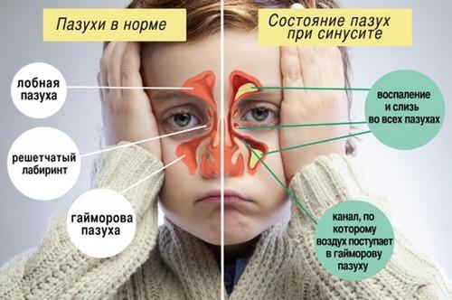 Лечение синусита, самостоятельно, дома