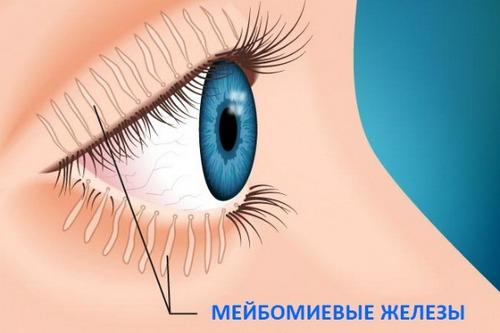 Мейбомиевый блефарит