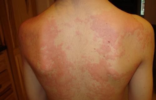 Лечение аллергической крапивницы