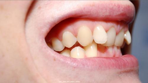 Как обеспечить ребенку, ровные зубы